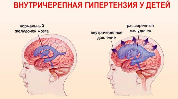 Заболевания слюнных желез и их протоков причины, признаки, лечение