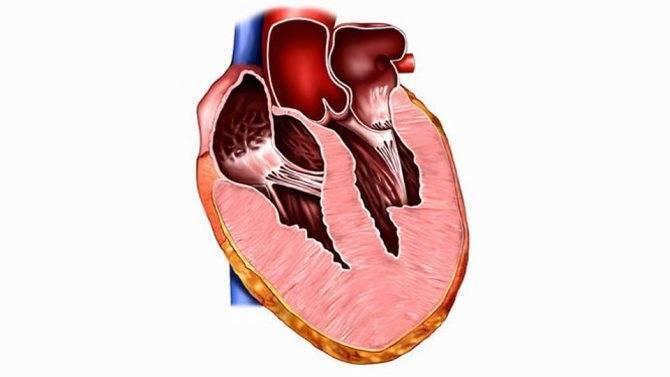 Кардиомиопатия (кмп). классификация кардиомиопатий. диагностика и лечение
