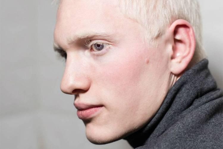 Глазной альбинизм - что это, описание, фото
