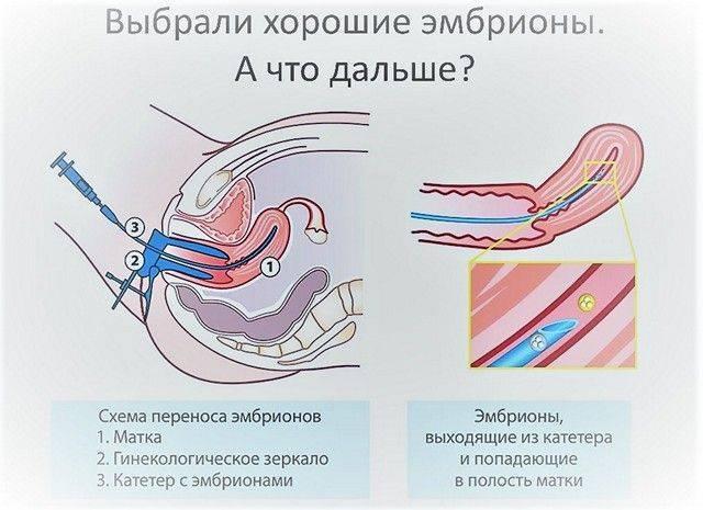 Как вести себя после переноса эмбрионов?
