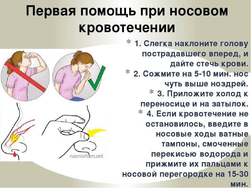 Как аккуратно остановить кровь из носа у ребенка