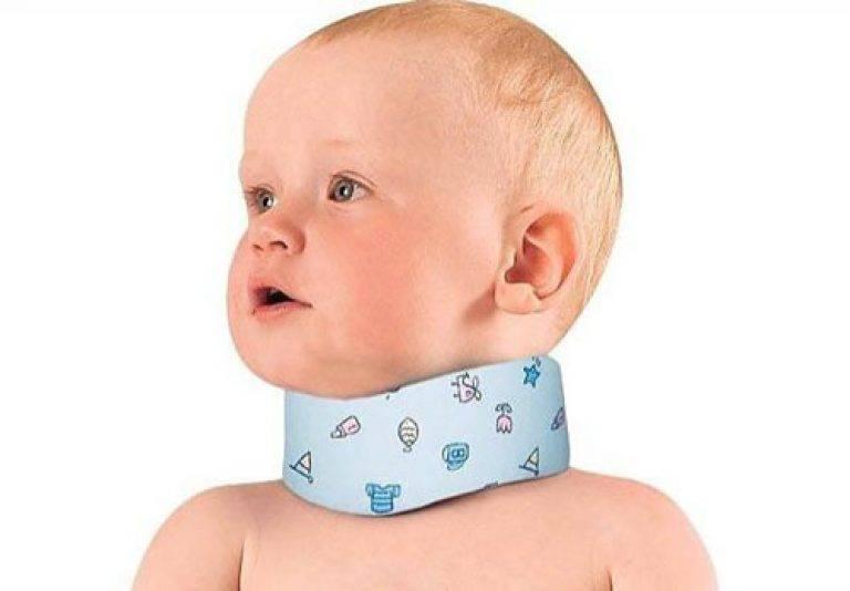 Массаж ребенку при кривошее