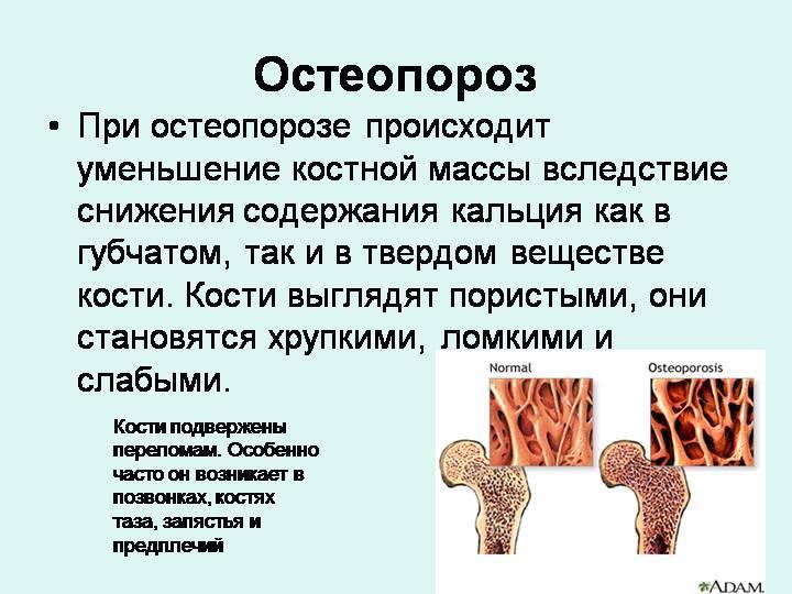 Все про остеопороз