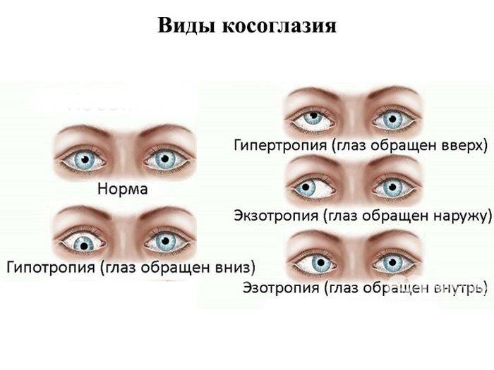 Лечение косоглазия у детей - энциклопедия ochkov.net