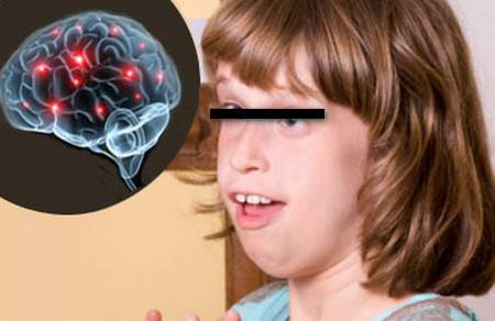 Синдром ретта - симптомы болезни, профилактика и лечение синдрома ретта, причины заболевания и его диагностика на eurolab