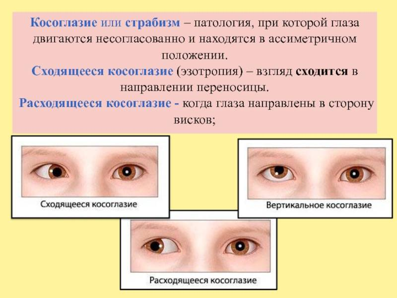 Лечение косоглазия в москве. симптомы и причины косоглазия, операция стоимость