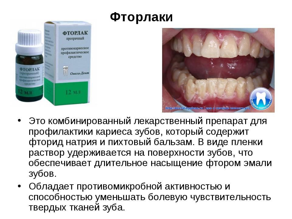 Фторирование зубов у детей и взрослых