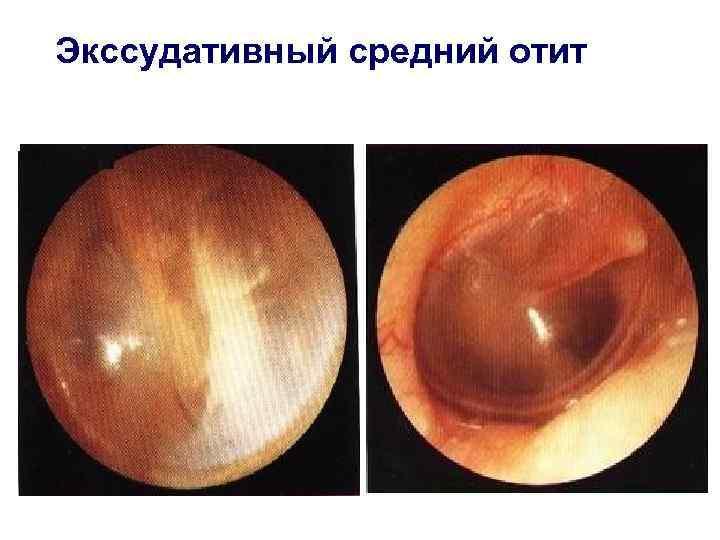 Отит среднего уха у детей (хронический)