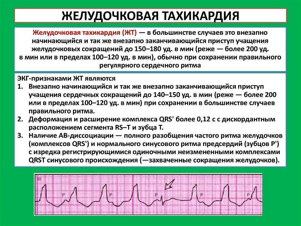 Внезапная сердечная смерть (всс): что это, причины и профилактика - сибирский медицинский портал