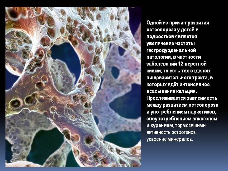 Остеопороз у женщин - симптомы, лечение   статьи