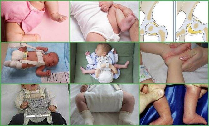Гимнастика при дисплазии тазобедренных суставов у детей до года