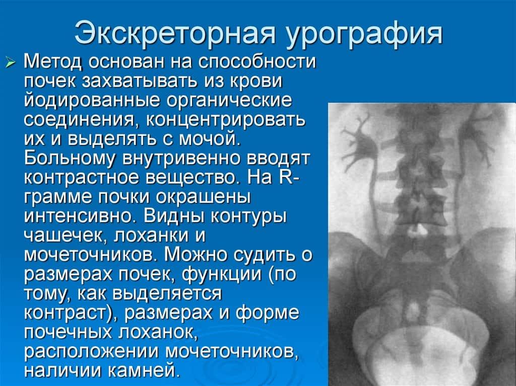 Чем заменить цистоскопию: узи, мрт, уретроскопия, цистография?
