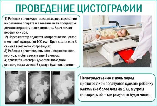 Цистография мочевого пузыря: разновидности, показания и противопоказания к проведению