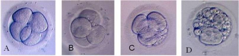 Преимплантационный генетический анализ эмбрионов