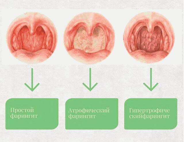 Хронический фарингит: причины возникновения, симптомы, медицинская помощь