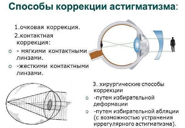 Что такое астигматизм: причины возникновения, классификация, диагностика и лечение - энциклопедия ochkov.net