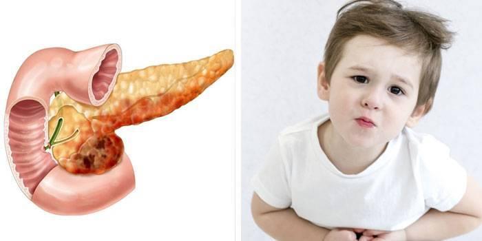 Причины и симптомы острого панкреатита у детей