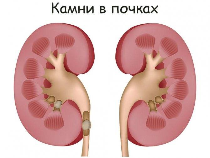 Гидронефроз почек: симптоматика, причины, лечение