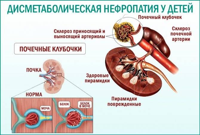 Иммунодефицит у детей - симптомы болезни, профилактика и лечение иммунодефицита у детей, причины заболевания и его диагностика на eurolab