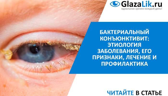 Чем закапывать глаза при конъюнктивите? - энциклопедия ochkov.net