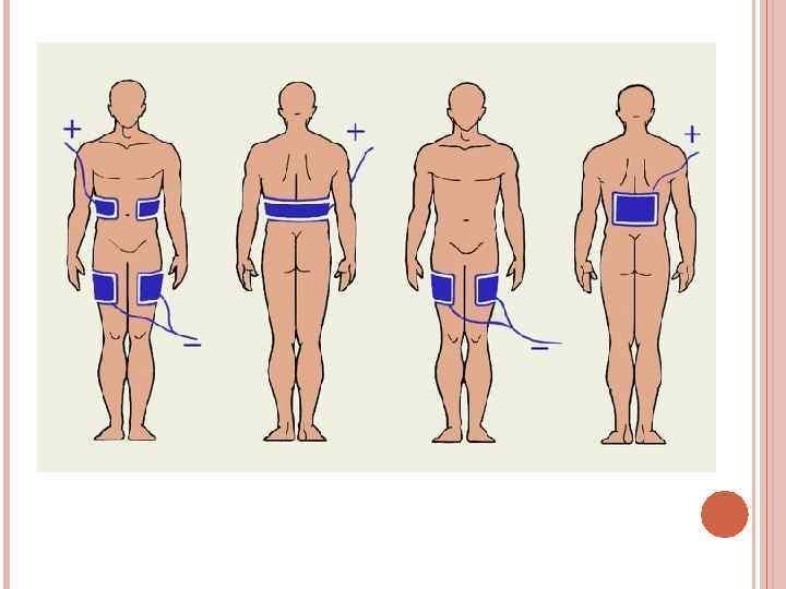 Электрофорез с эуфиллином грудничку: инструкция и побочные действия