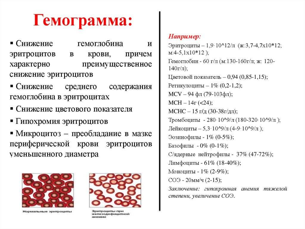 Как поднять гемоглобин - причины анемии и способы борьбы