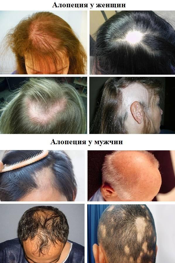 Выпадение волос (алопеция)