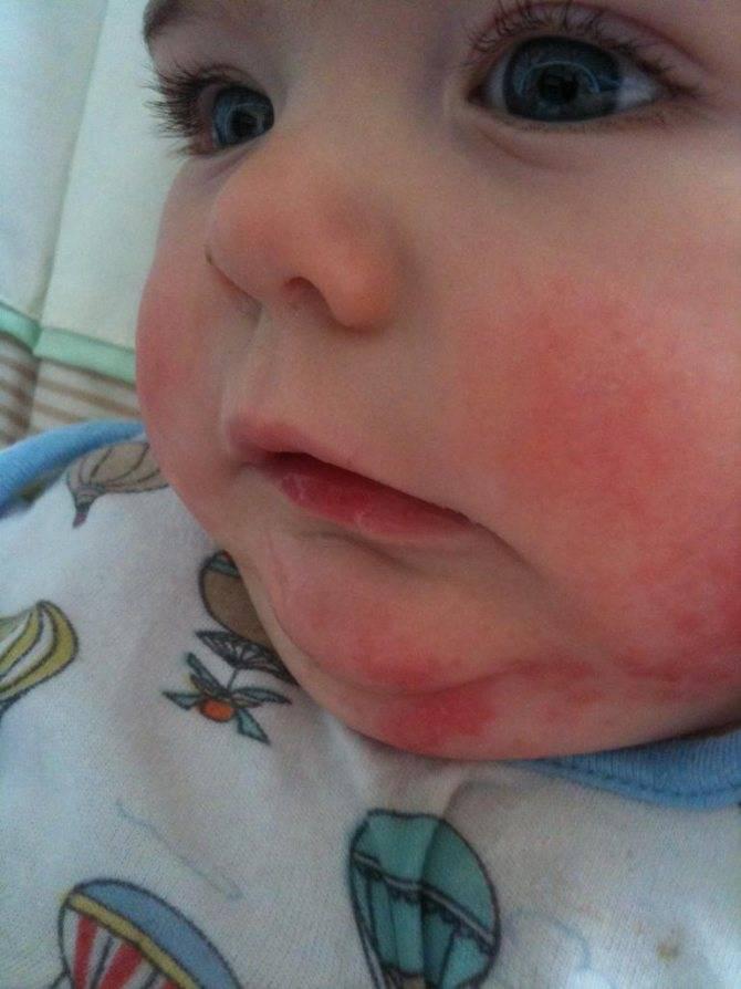 Статьи и новости медцентра элиса  - анализ на аллергены - что нужно знать аллергику