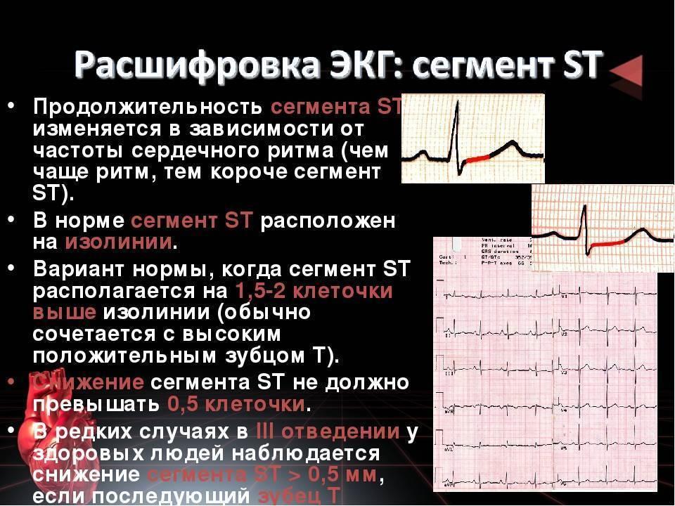 Экг и варианты описания сердечного ритма.