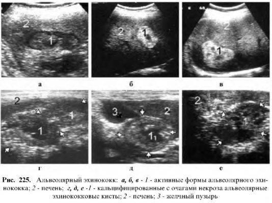 Патологии поджелудочной железы у плода: можно ли их увидеть на узи