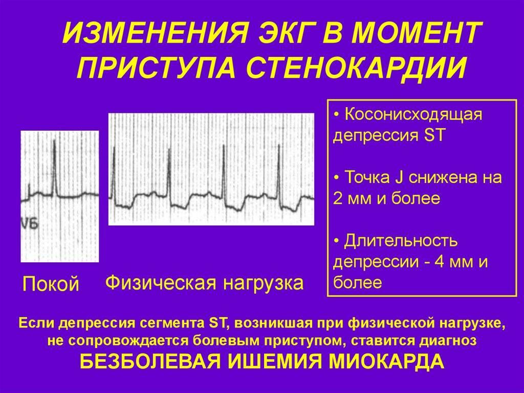 Электрокардиография (экг). экг с нагрузкой. расшифровка электрокардиограммы