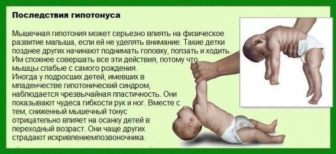 Симптомы и причины гипотонуса мышц | food and health
