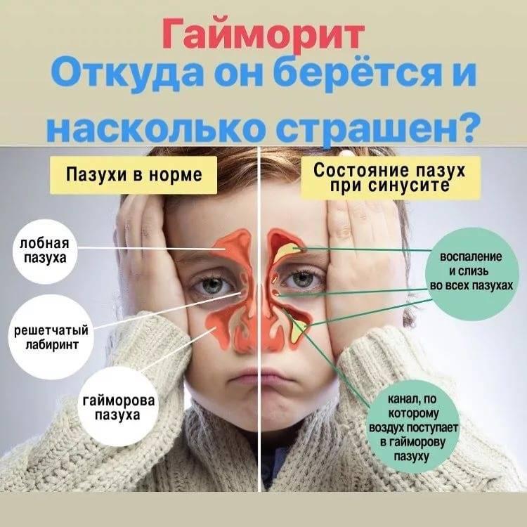 Верхнечелюстной синусит – симптомы и лечение у взрослых, риносинусит