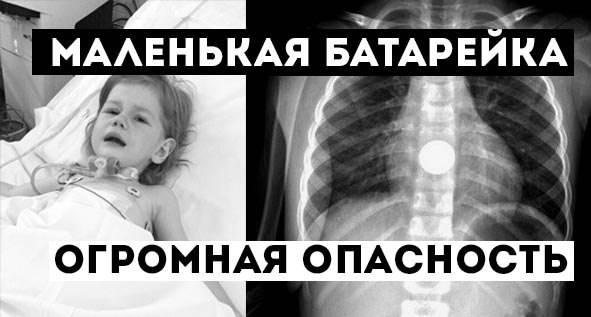 Инородное тело в кишечнике. лечение: извлечение из кишечника инородных предметов.