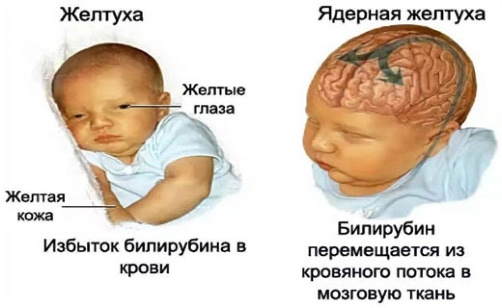 Опасна ли физиологическая желтуха у новорожденных?