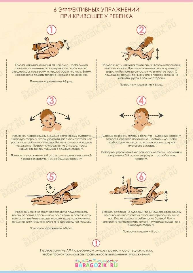 Что такое кривошея у новорожденного ребенка и детей до года: признаки, симптомы, причины, лечение в домашних условиях, комплекс упражнений