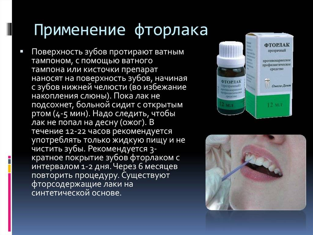 Фторлак для зубов: инструкция по применению, состав, показания к применению