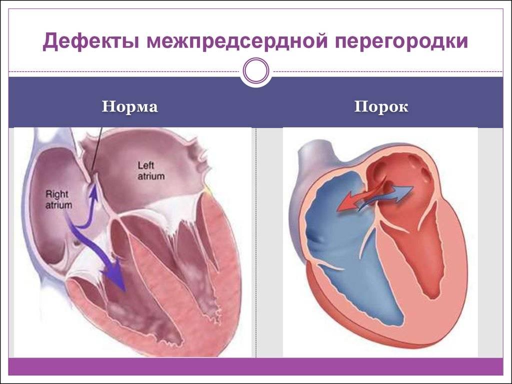 Диагностика и лечение сердечно-сосудистых заболеваний у детей в москве