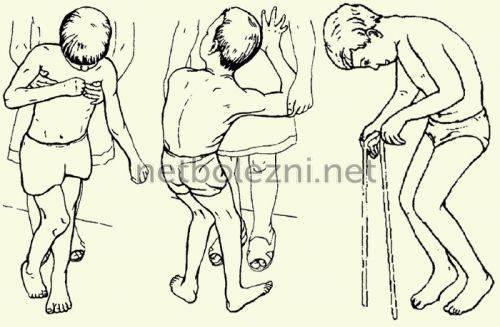 Детский церебральный паралич - симптомы болезни, профилактика и лечение детского церебрального паралича, причины заболевания и его диагностика на eurolab