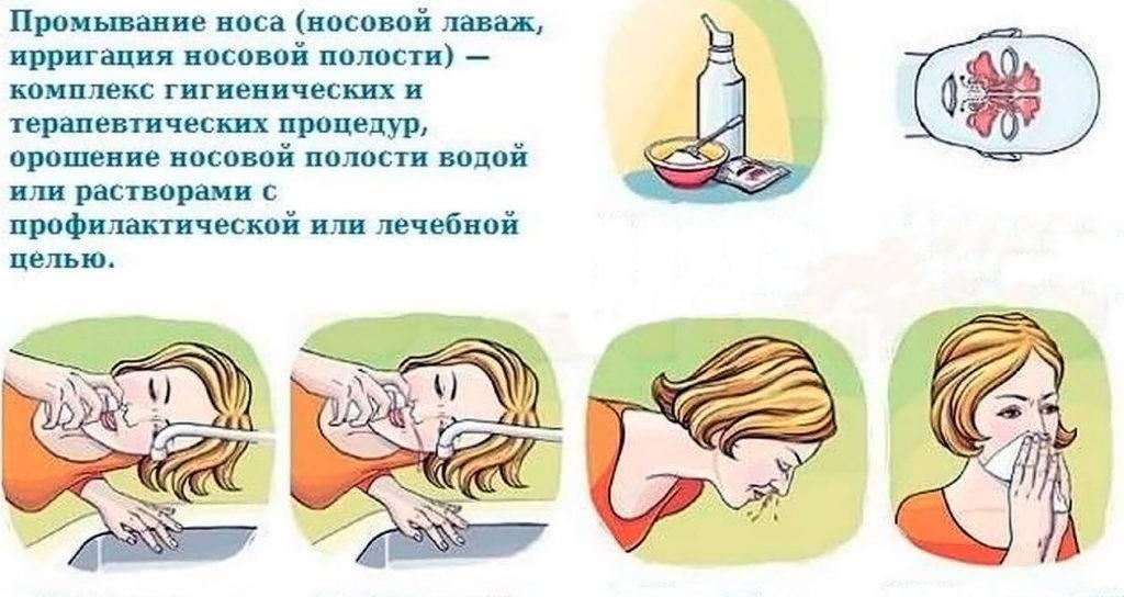 Промывание носа. за и против - доказательная медицина для всех