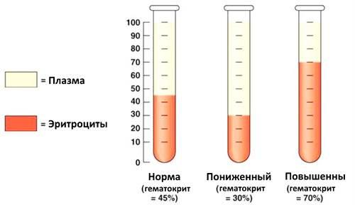 Причины повышенного и пониженного лдг в крови | клиника «фамилия»