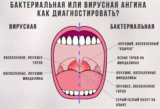 Ангина: особенности, классификация, симптомы