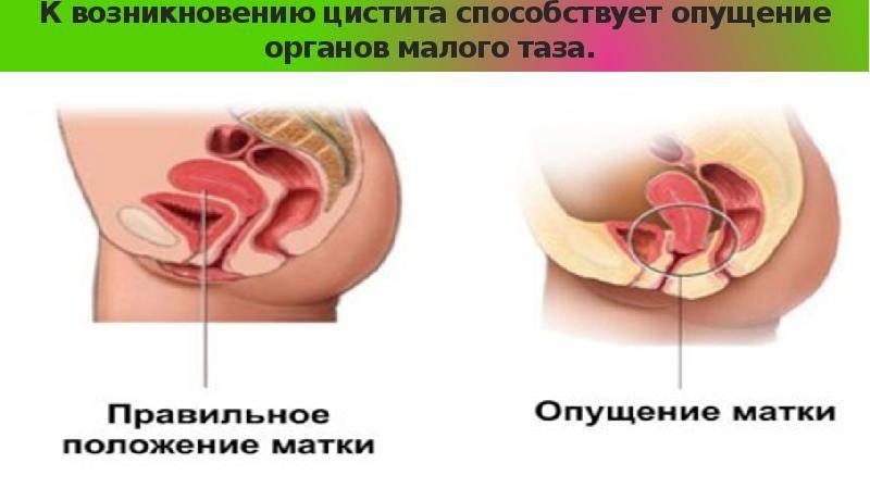 Опущение стенок влагалища и матки: безоперационное и хирургическое лечение