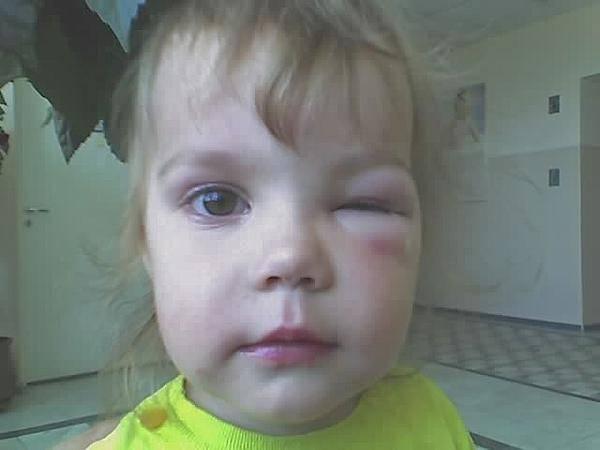Чем для детских глаз опасны укусы комаров?