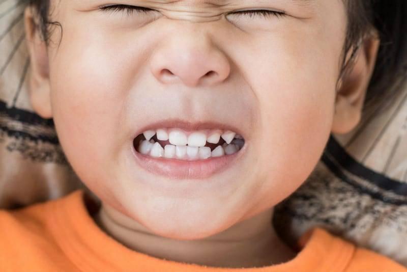 Почему ребенок во сне скрипит зубами и как с этим бороться: причины бруксизма
