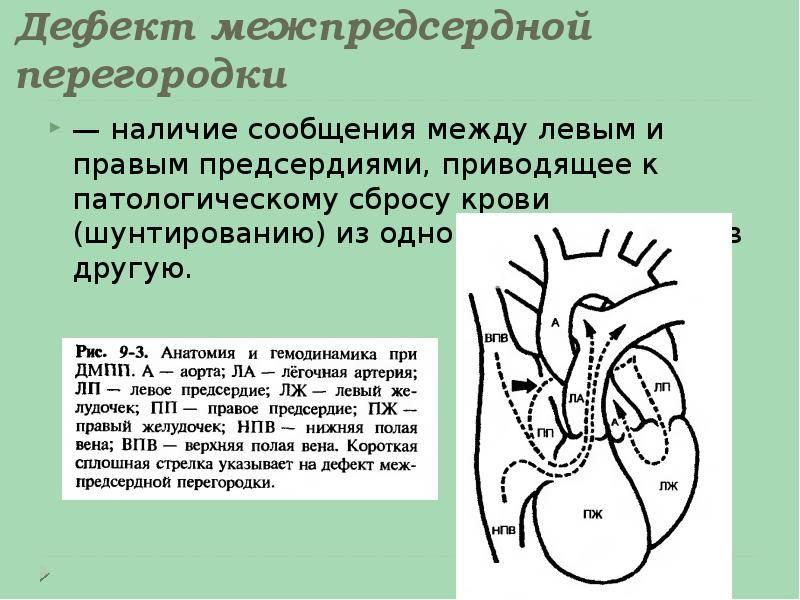 Глава 09. врождённые пороки сердца