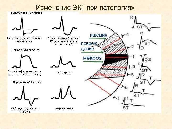 Какие болезни сердца позволяет обнаружить экг