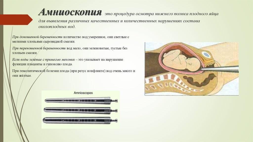 Лапароскопическая операция по удалению камней из желчного пузыря