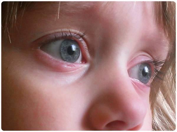 Что делать, если воспалился глаз у ребенка
