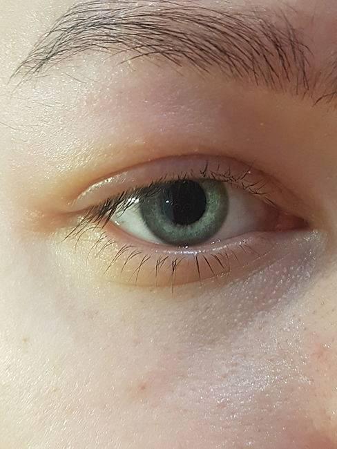 Профилактика глазных заболеваний, отеки век — сага-оптика